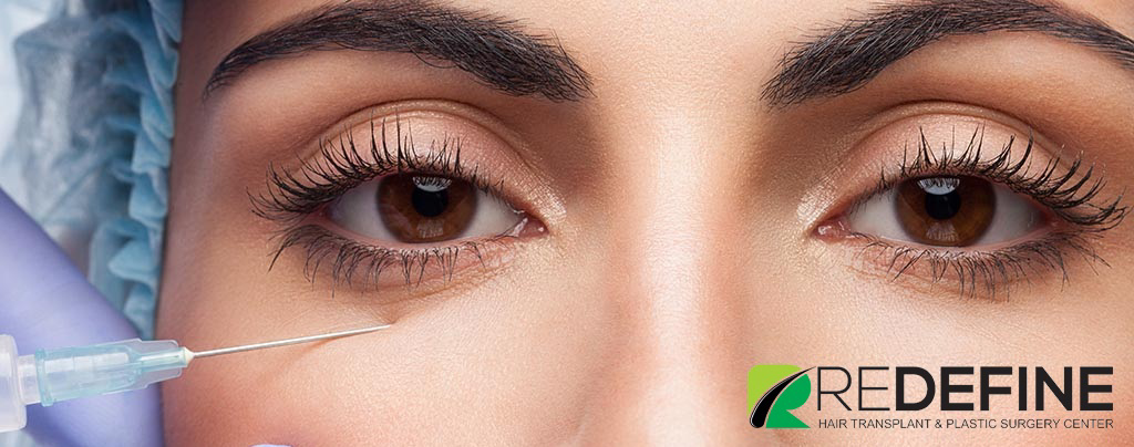 Laser Treatment For Dark Circles Under Eyes Cost In