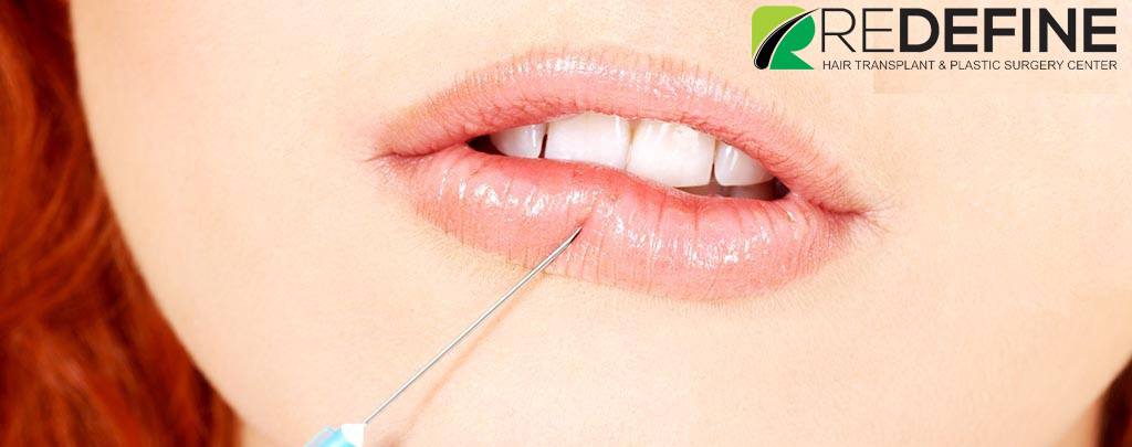 Filler-Injections hyderabad