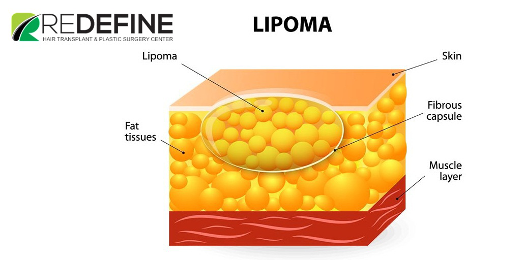 Lipoma Removal Cost In Hyderabad | Lipoma Removal In Hyderabad