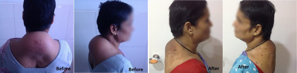 buffelo treatment before & after