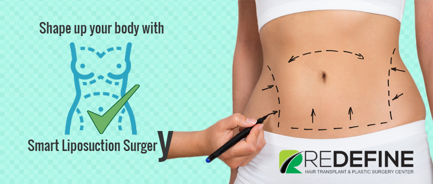liposuction Surgery hyderabad